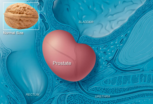 Prostate Cancer Treatment in Mumbai|Prostate Specialist in South Mumbai