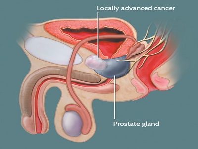 overview of localized prostate cancer