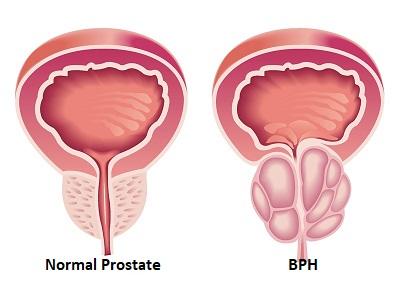 Prostate cancer treatment in Mumbai